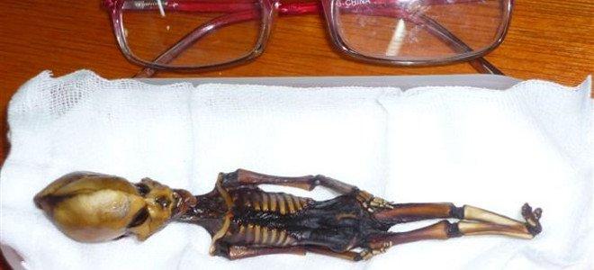 Τί εἶναι πάλι ἐτοῦτος ὁ σκελετός μικρογραφία;1
