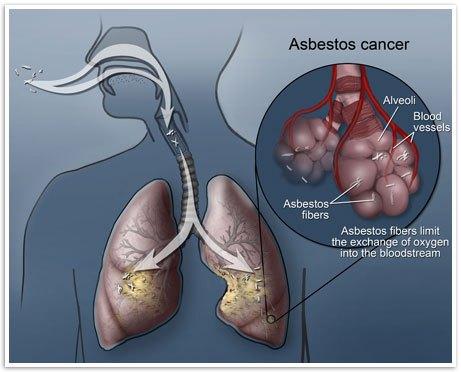 Ὁ ΠΟΥ «ἀνεκάλυψε» τὰ αἴτια τοῦ καρκίνου!!!2