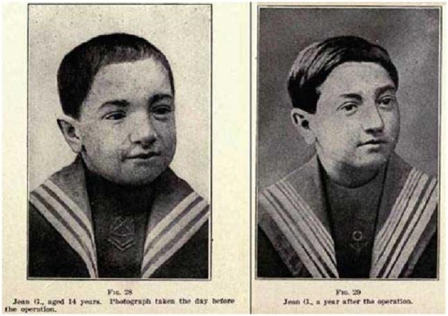 Δεκατετράχρονο αγόρι (χαμηλής νοημοσύνης) προ της δεκαετίας του 1920 στο οποίο μεταμοσχεύθησαν οι όρχεις του πατέρα του επί των δικών του. Δεξιά, το ίδιο αγόρι σε ηλικία 15 χρονών. Η επέμβαση έγινε με το σκεπτικό βελτιώσεως της πνευματικής του καταστάσεως.