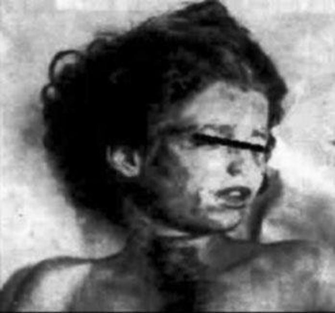 Στην φωτογραφία: η νεκρή Mary Phagan με το σημάδι στο λαιμό της από το καλώδιο που τυλίχθηκε γύρω της για να στραγγαλισθεί.