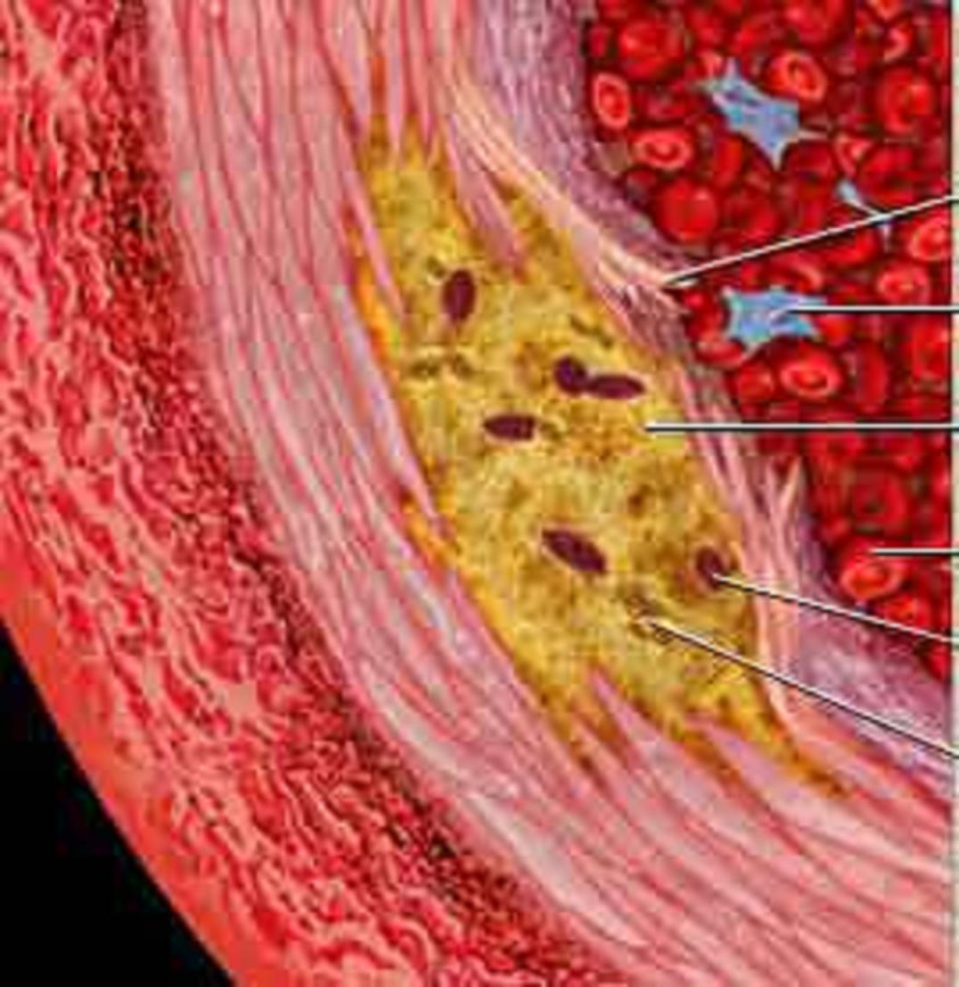 Ἄρα γε φταίει ἡ χοληστερίνη ἤ το σάκχαρο γιά τά καρδιαγγειακά;6