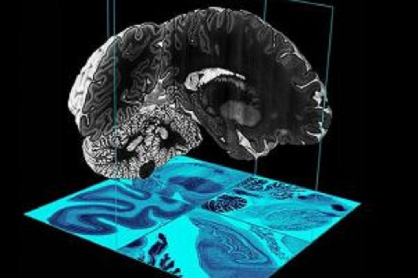 Ὡραῖα, τὸν μελετήσαμε τὸν ἐγκέφαλο. Ὥρα νὰ τὸν ἀναπαράξουμε!