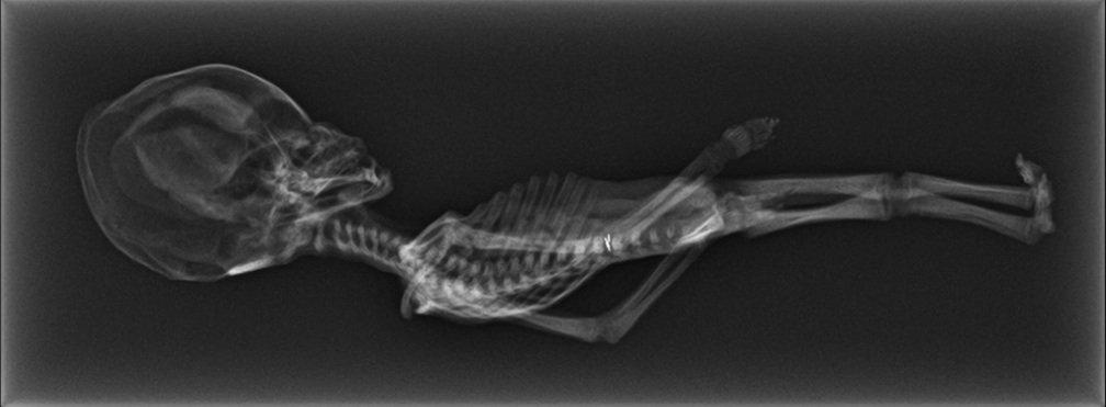 Τί εἶναι πάλι ἐτοῦτος ὁ σκελετός μικρογραφία;9