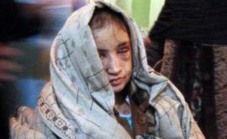 Ἡ 15χρονη Ἀφγανή σώθηκε ἀλλά οἱ δράστες διαφεύγουν1
