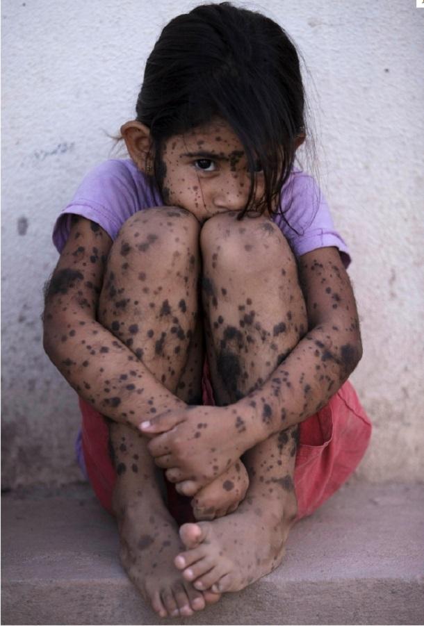 Αργεντινή: Ένα 5χρονο κορίτσι με δερματικές παθήσεις που αποδίδονται στους αεροψεκασμούς της Μονσάντο