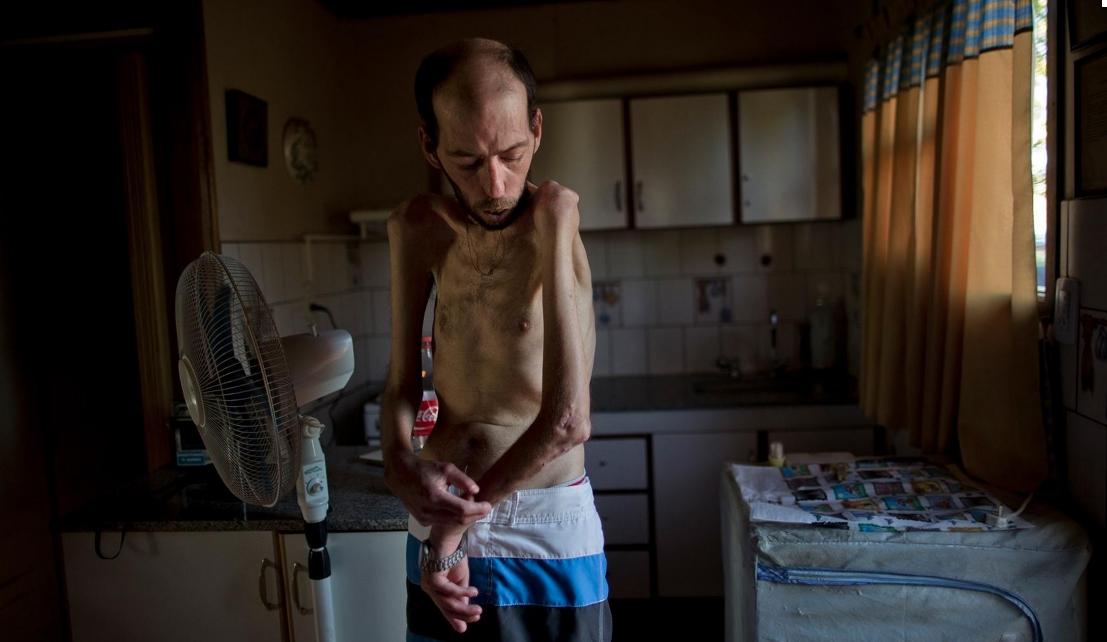 Αργεντινή: Πρώην εργαζόμενος στους αεροψεκασμούς της Μονσάντο, με σοβαρά προβλήματα υγείας πλέον