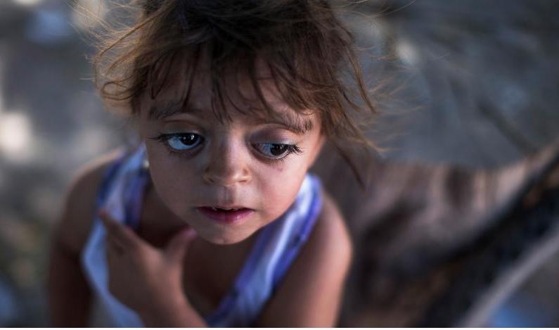 Αργεντινή: Δίχρονο κοριτσάκι με παραμορφώσεις, που αποδίδονται στους αεροψεκασμούς της Μονσάντο