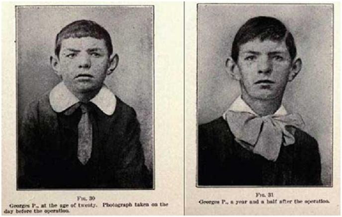 (Αριστερά) Εικοσάχρονος άνδρας του 1920 πού μεταμοσχεύθηκε με τους αδένες της μητέρας του επί των όρχεών του. (Δεξιά) Ο ίδιος άνδρας σε ηλικία 21 ετών.